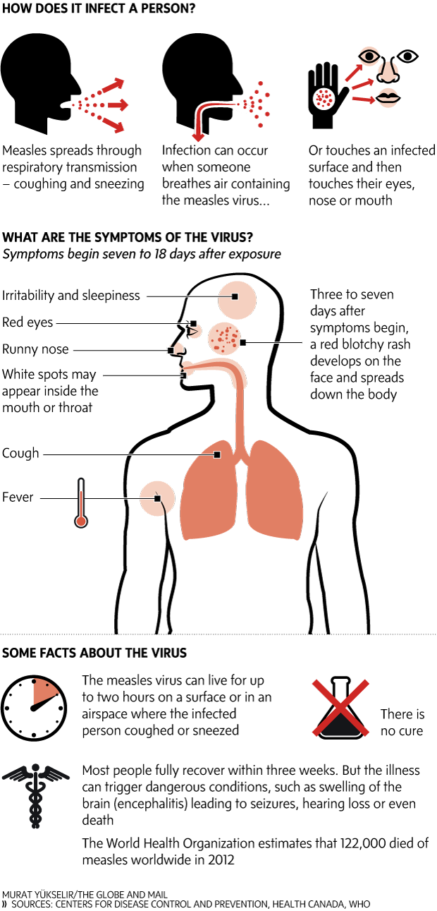 the symptoms and complications of measles Measles: measles symptoms usually show up in two stages the first stage begins with a runny nose, cough, and a slight fever the first stage begins with a runny nose, cough, and a slight fever the individual's eyes become red and sensitive to light as the virus spreads.