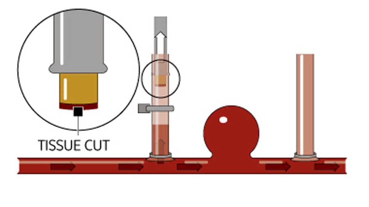 The cable is retracted and the vein is clamped off to stop the blood flow from the artery. Vacuum suction keeps the circular tissue cut attached to the tip of the cable. The laser cuts a second hole in the artery where the vein on the right has been attached. It is clamped off as well.