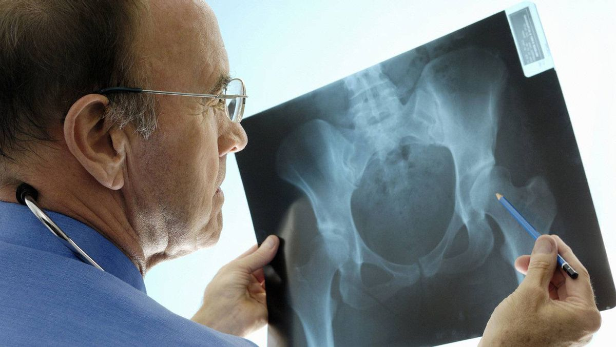 Surgeon consulting pelvic x-rays for a hip replacement.