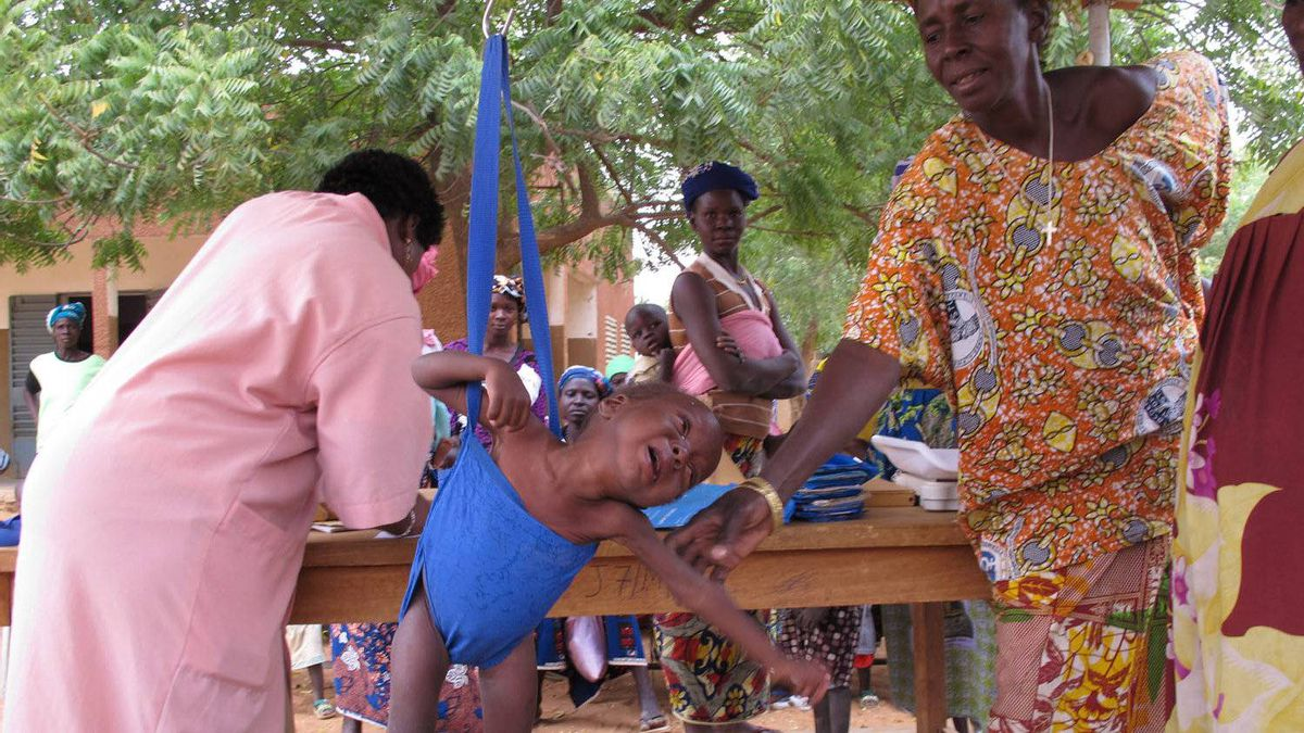 A severely malnourished child is weighed at a health centre in Basnere, a village on the edge of the Sahel in Burkina Faso. Because of drought and higher food prices, malnutrition has become a crisis in eight countries in West Africa this year.