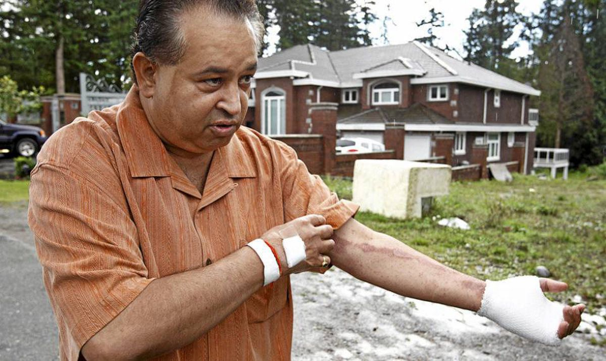 Maninder Gill walks outside of his home in Surrey, B.C. September 20, 2010 and shows scars from a previous stabbing .