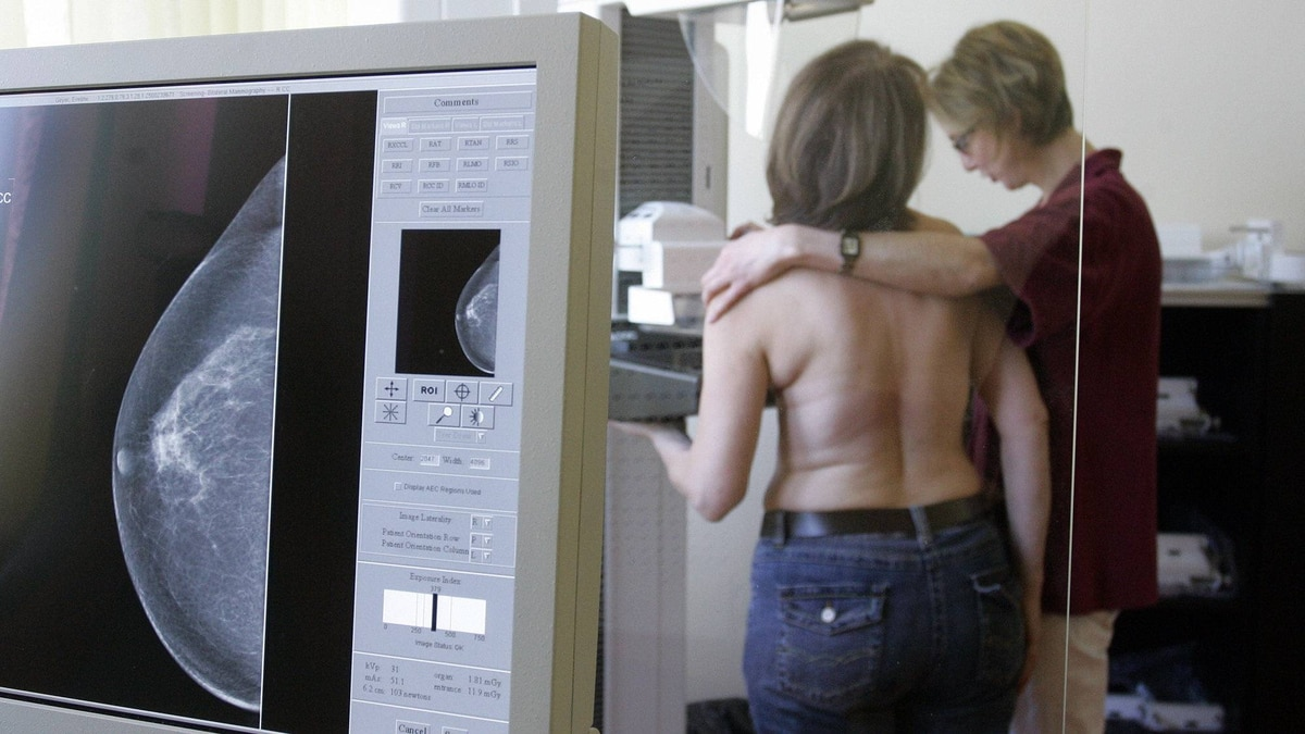 An X-ray technician (right) and an assistant medical technician demonstrate the mammogram screening program in Berlin, Thursday, April 16, 2007.