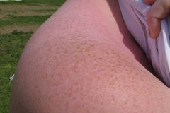 One of my moles has changed shape, should I worry? - The