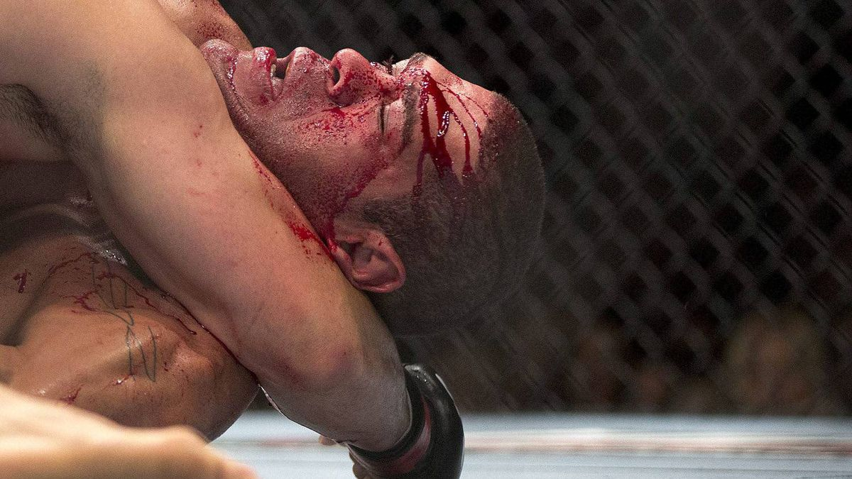 Blood streams from the face of Antonio Silva as he fights against Cain Velasquez during a UFC 146 heavyweight bout, Saturday, May 26, 2012, in Las Vegas. Velasquez won by knockout in the first round. (AP Photo/Julie Jacobson)