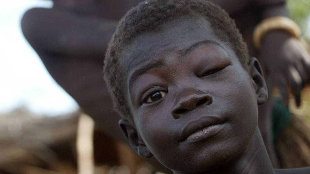 """Martha Halim, 13, who suffers from a rare affliction called """"nodding disease,"""" sits with siblings at her family home in Kacnguan in southern Sudan, Nov. 24, 2003."""