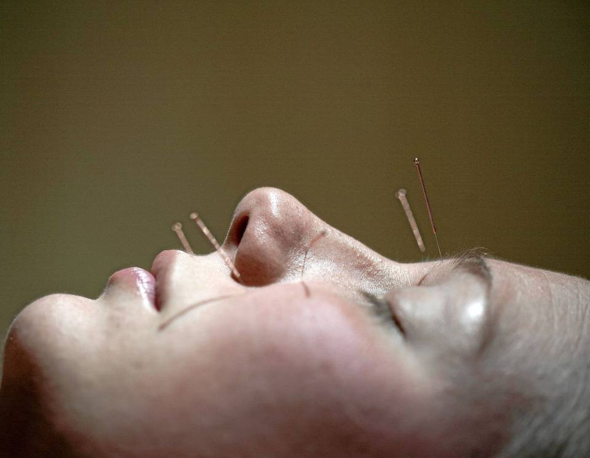 Ask a potential acupuncturist about their experience to confirm quality of care.