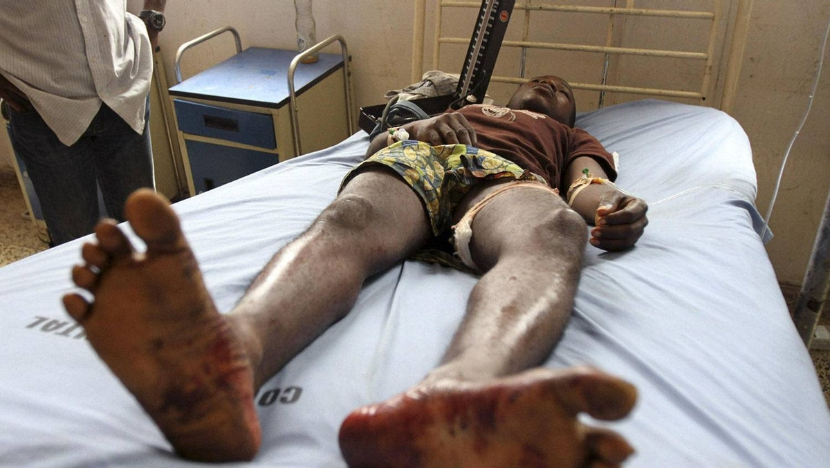 A protester lies on a hospital bed after he was shot by the police during a protest against a fuel subsidy removal in Lagos January 9, 2012. Police shot dead one protester and wounded nearly two dozen as thousands of Nigerians demonstrated against the axing of fuel subsidies in Africa's top oil producing nation on Monday and unions launched an indefinite nationwide strike.