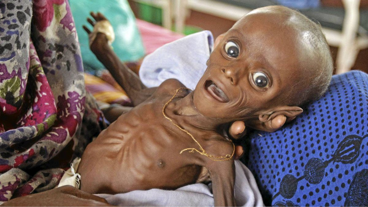 In this Tuesday, July 26, 2011 file photo, then seven month old Minhaj Gedi Farah is treated in a field hospital of the International Rescue Committee (IRC) in Dadaab, Kenya.