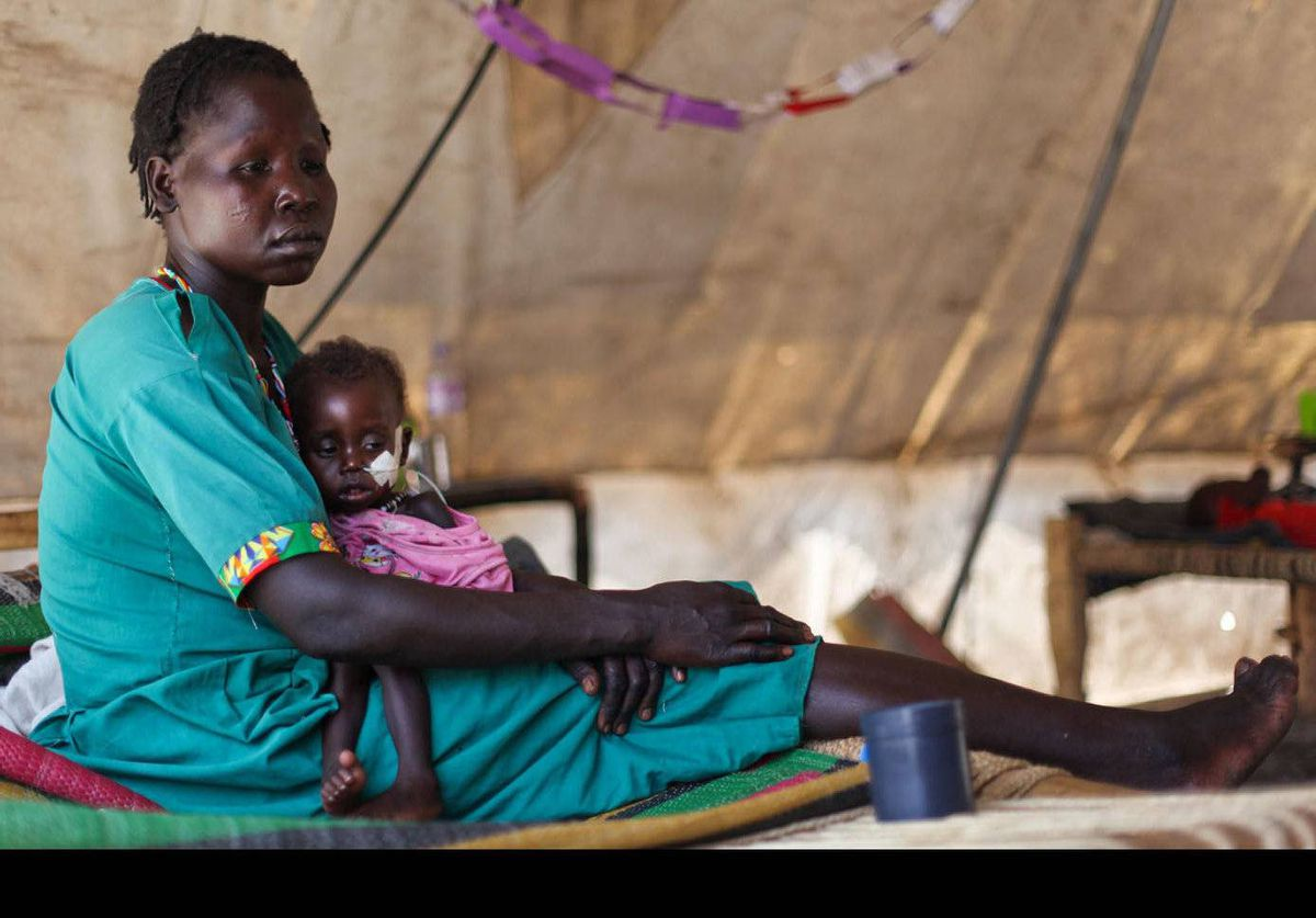 A woman cradles her severely malnourished child at a clinic in Doro refugee camp in South Sudan.