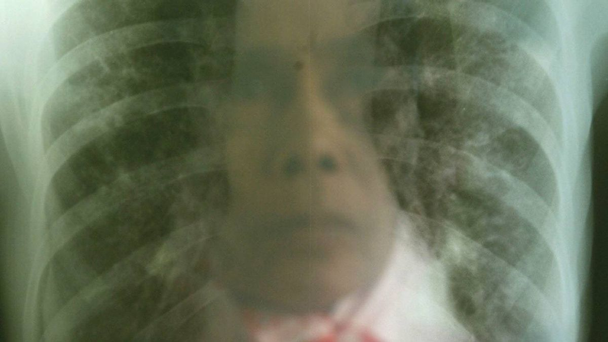 A woman with suspected Tuberculosis looks at her x-ray result at a TBC hospital in Makassar in Indonesia's South Sulawesi province October 23, 2009. TB bacteria destroys patients' lung tissue, causing them to cough up the bacteria, which then spreads through the air and can be inhaled by others.