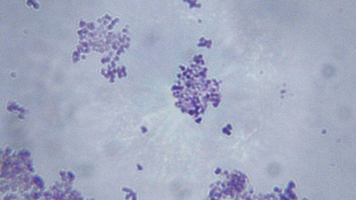 Microscopic image of Staphylococcus Aureus