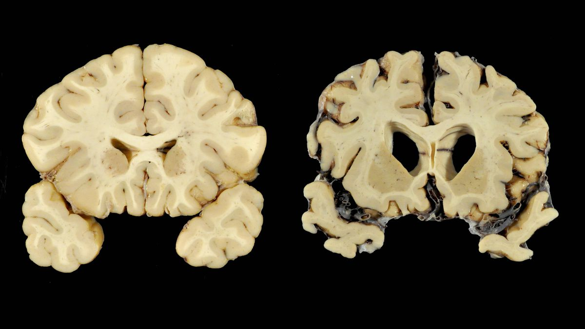 Nearly 90% of former football players studied had brain ...