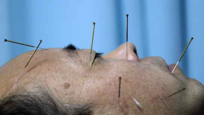 A patient lies on a bed as he undergoes acupuncture treatment at Beijing's Capital Medical University Traditional Chinese Medicine Hospital April 6, 2010.