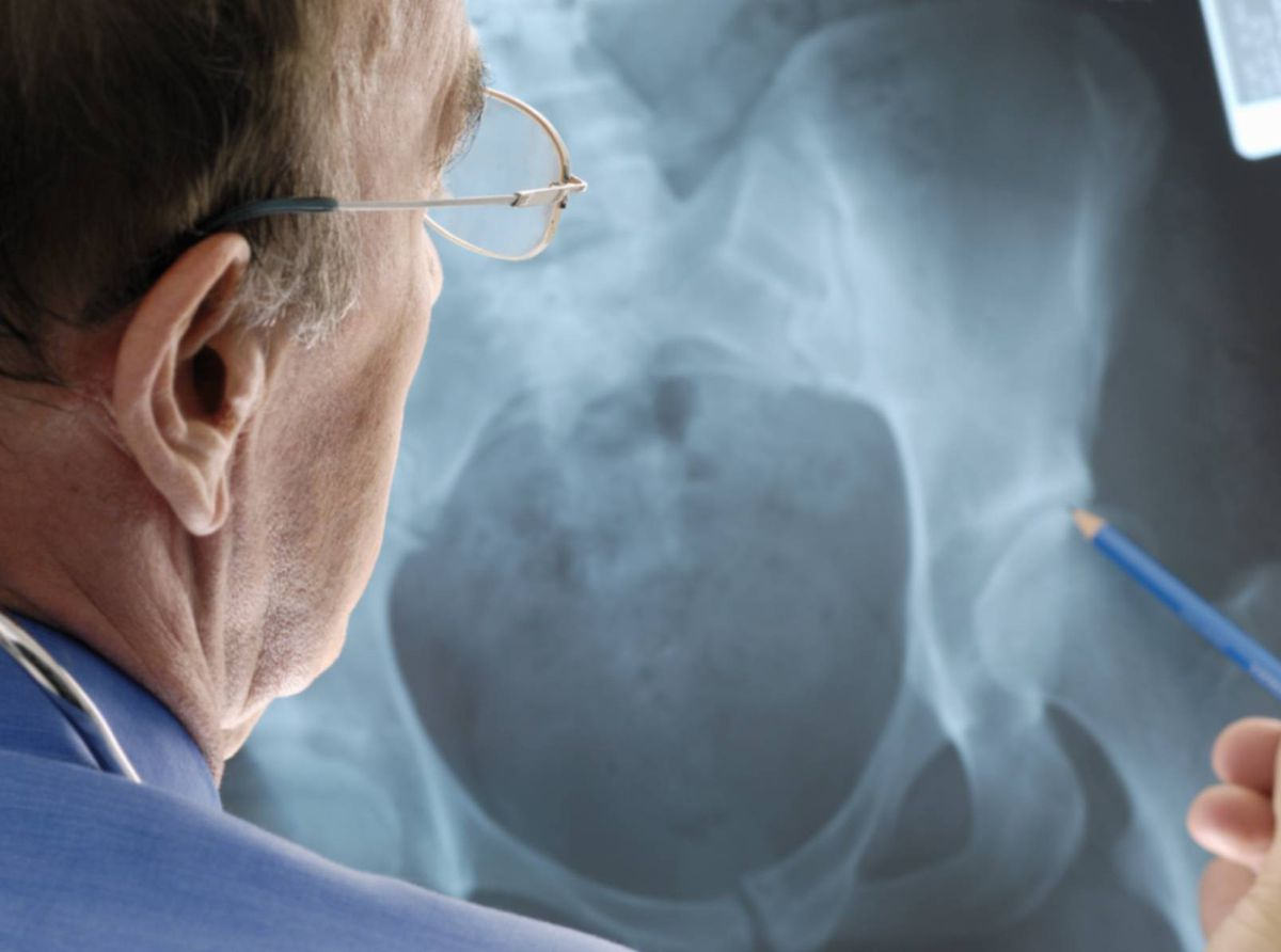 Doctor examining the x-ray of a hip joint replacement patient with osteoporosis.