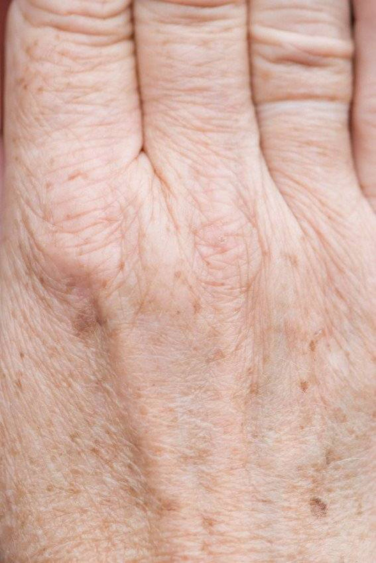Skin spots that appear with age don't have to be a permanent
