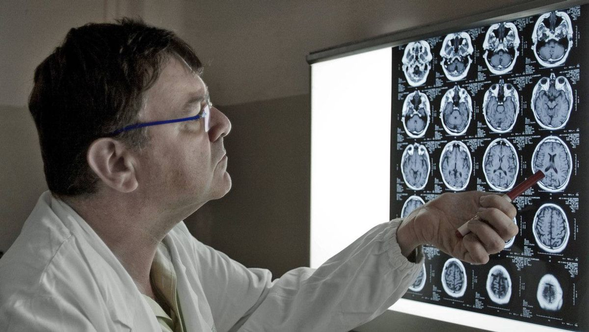 Paolo Zamboni inspects the brain scan of an MS patient in his office at the University Hospital of Ferrara, Italy, on Nov. 19, 2010.