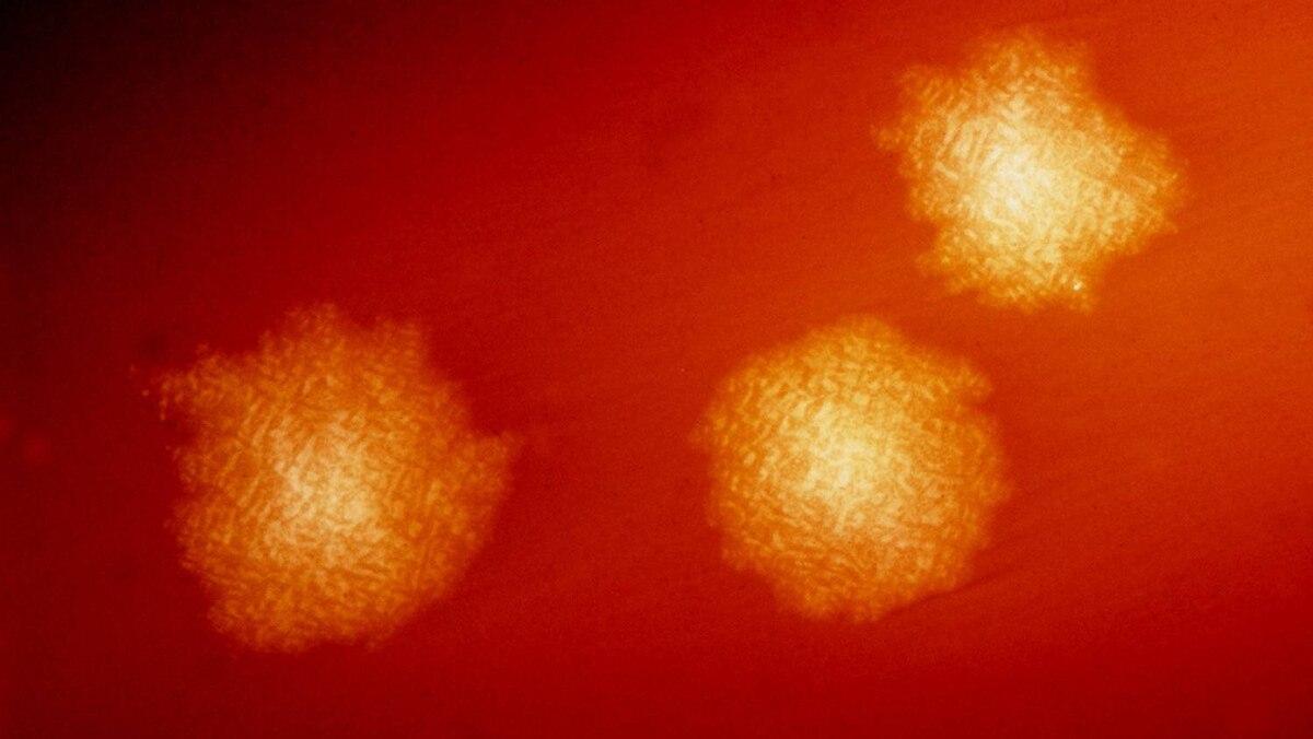 Clostridium Difficile - Photomic: This photograph depicts Clostridium difficile colonies after 48hrs growth on a blood agar plate.