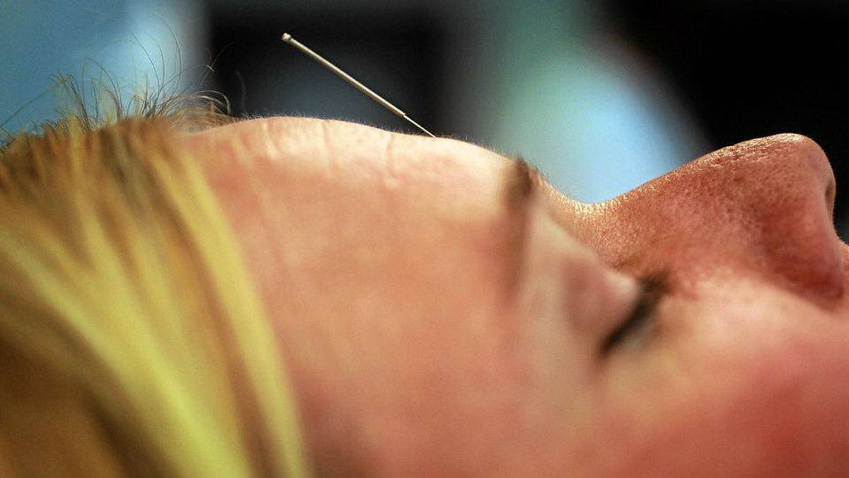 Cristi Bundukamara relaxes during an acupuncture session during the Integrative Medicine symposium at the University Of Miami Miller School Of Medicine on April 23, 2010 in Miami, Florida.