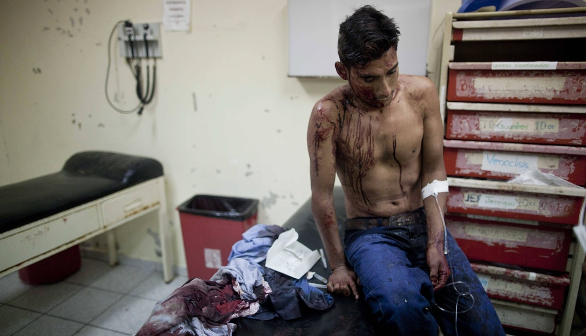 A man who says he was attacked with a knife during an attempted robbery sits covered in blood inside the Catalino Rivas public hospital emergency room in San Pedro Sula, Honduras, March 9, 2012.
