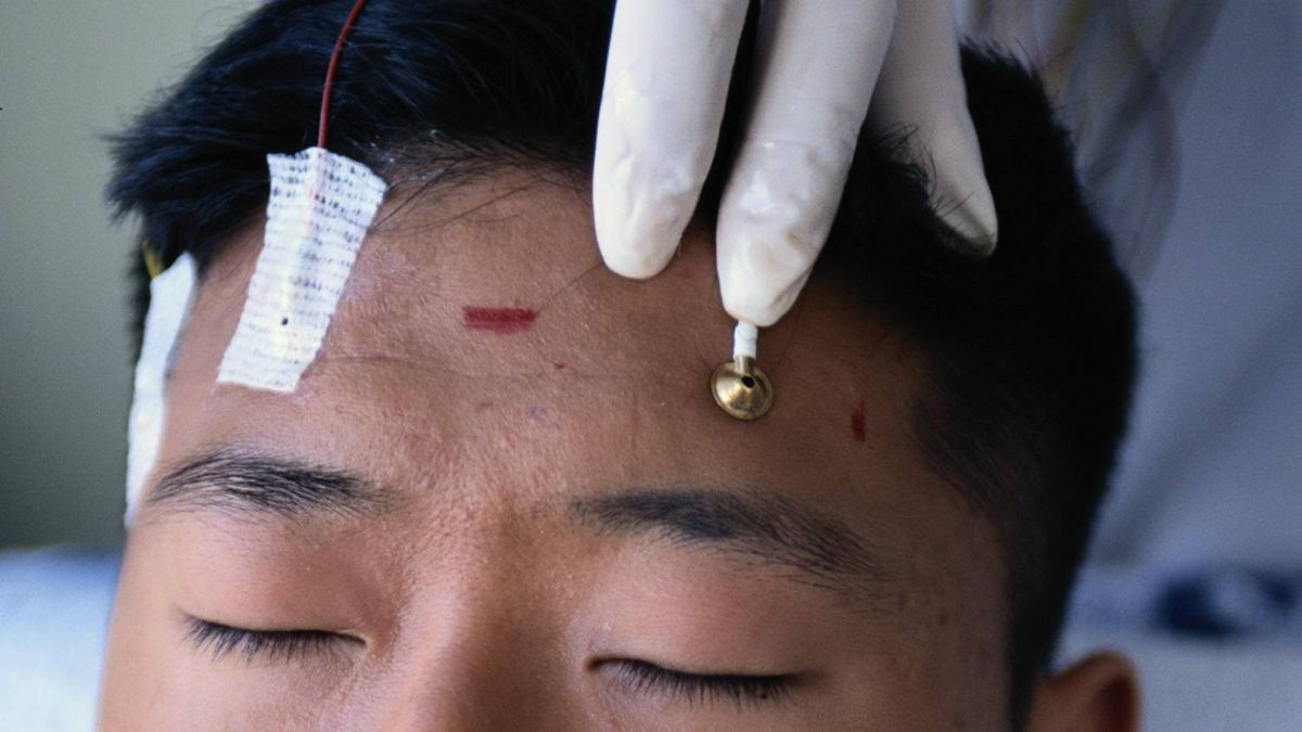 Electrodes on a person's forehead.