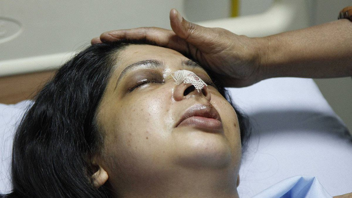 Rumana Monzur was attacked and blinded in Dhaka, Bangladesh two weeks ago, an act she alleges her husband committed. She is photographed here in LabAid hospital on June 22, 2011.