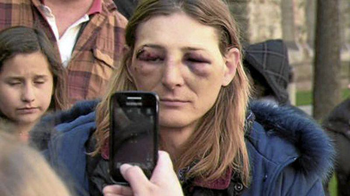 Angela Turvey was arrested Friday after clashing with police oputside 361 University Avenue courthouse where Occupy Toronto had tents erected. She was videotaping the police. She claims she was injured during the altercation with police.