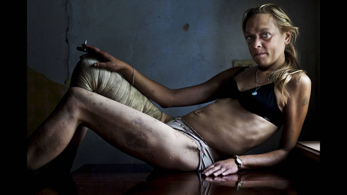 Brent Stirton of South Africa, a Getty Images photographer working for Kiev Independent, has won the first prize Contemporary Issues Singles with this picture of Maria, a drug addict and sex worker, in between clients in a room she rents in Kryvyi Rig, Ukraine August 31, 2011. Maria injects drugs on a daily basis and sees many men every week but claims she remains HIV negative. She says she need the money to support herself, her drug habit and her nine-year-old daughter.