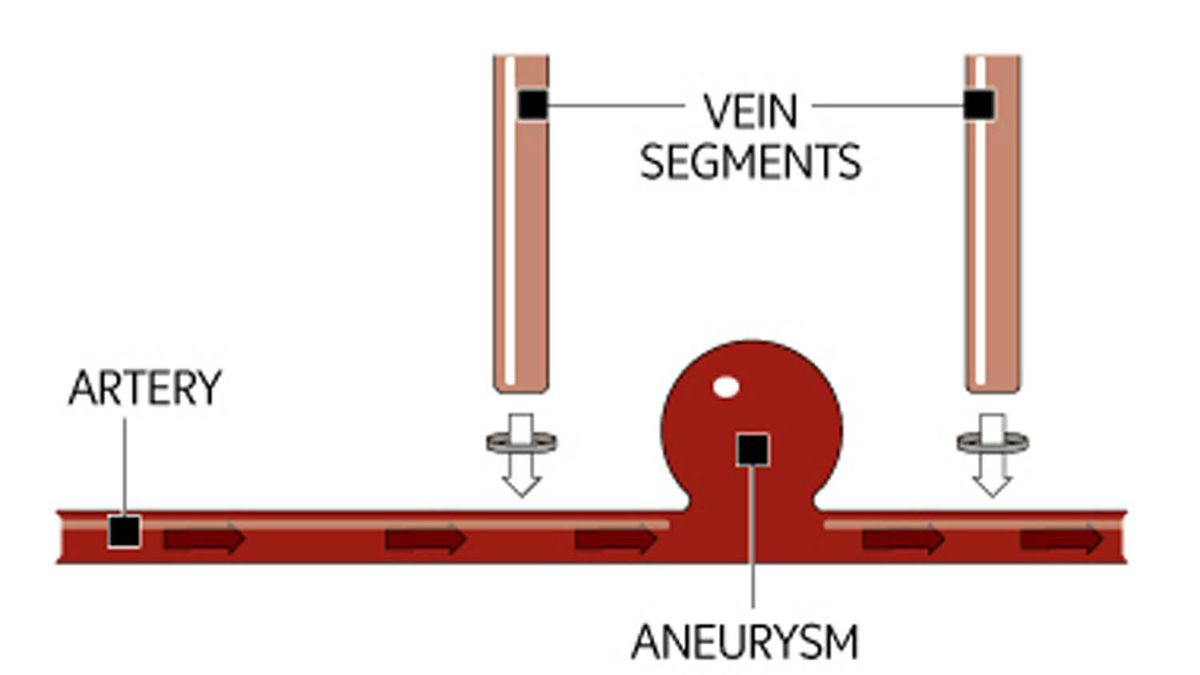 The main artery is not blocked with clamps. A piece of a vein, usually taken from the leg, is sewn on to the outer wall of artery on the left side of the aneurysm. A second piece is attached to the right. The artery is not punctured.