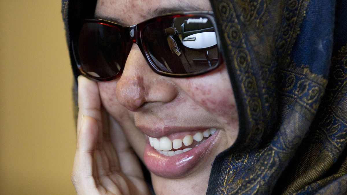 Rumana Monzur, a UBC student who was attacked and blinded by her husband in Bangladesh seen here October 11, 2011 during an interview with the Globe and Mail in Vancouver.