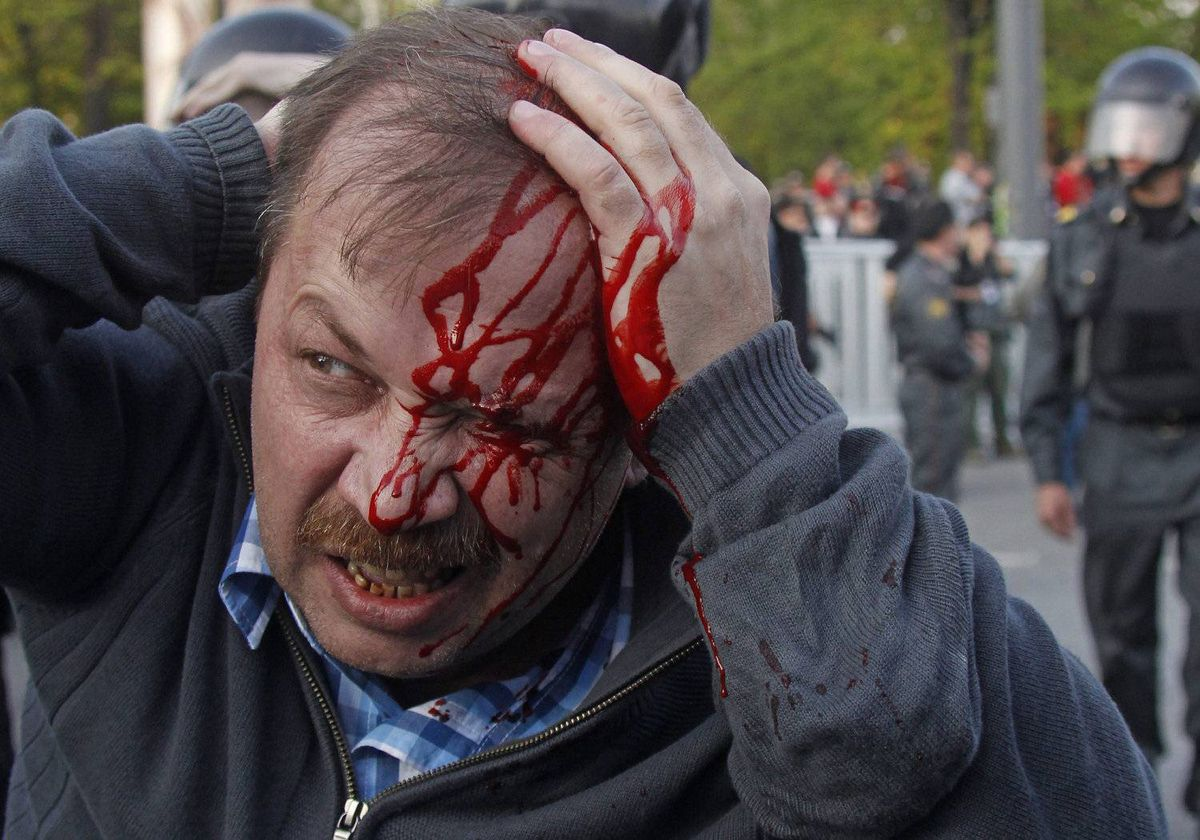 A wounded opposition protester winces in pain during a rally in Moscow on Sunday, May 6, 2012. Riot police in Moscow have begun arresting protesters who were trying to reach the Kremlin in a demonstration on the eve of Vladimir Putin's inauguration as president.