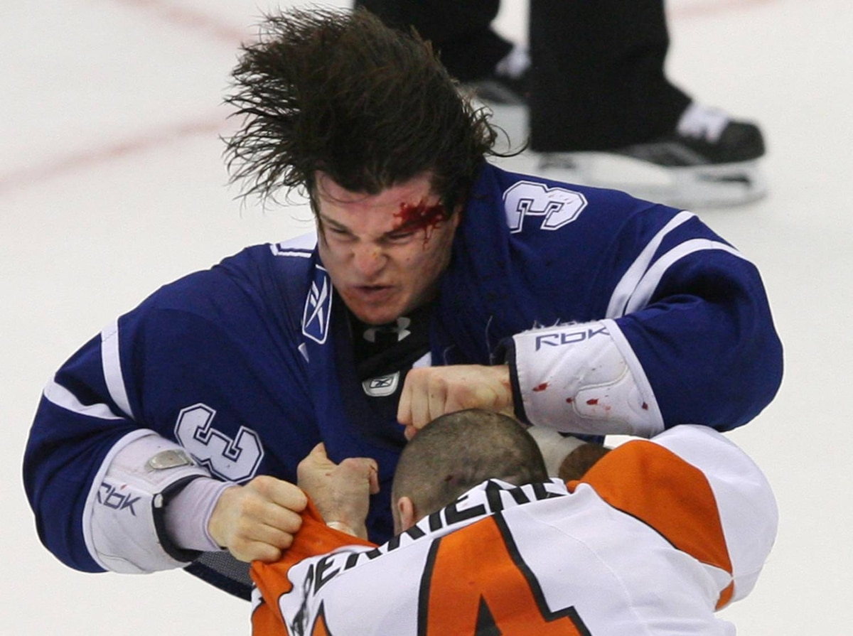 Toronto Maple Leafs' Garnet Exelby, top, bleeds from his forehead while fighting Philadelphia Flyers' Ian Laperriere in Toronto on Saturday, September 19, 2009.