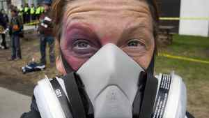 A protester sports a fake black eye and a mask during a demonstration against tuition-fee hikes in Montreal on April 26, 2012.