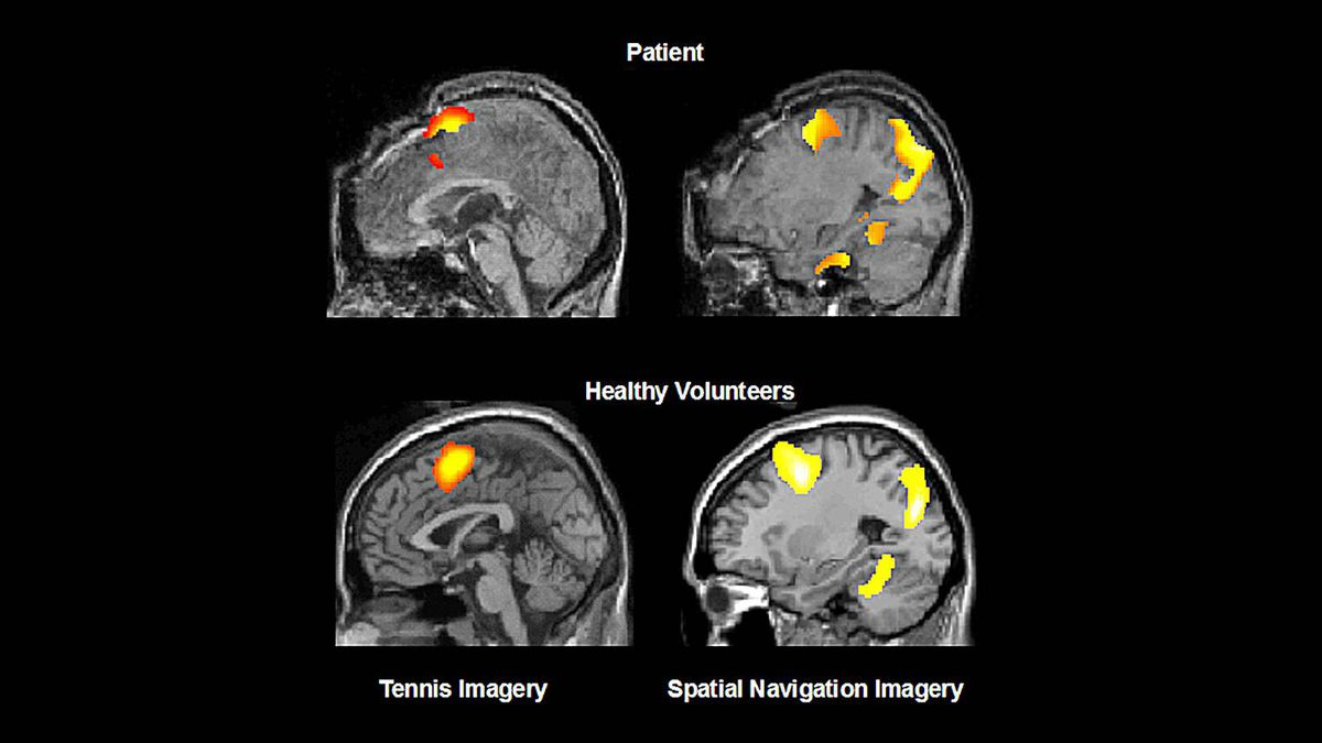 Brain images from a patient who was deemed vegetative but was able to imagine playing tennis would be great, especially compared to a healthy control. She isn't answering questions, but merely showing that she is conscious by producing the two brain states when asked to imagine playing tennis and imagine moving from room to room in her house.