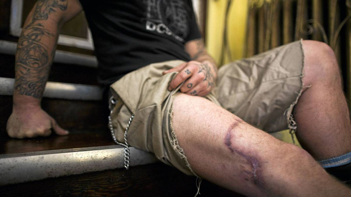 Christopher Evans, 33, who was bitten by a Vancouver police dog last June after he broke a window of a city bus, shows his wound at his hotel in the Downtown Eastside in Vancouver.