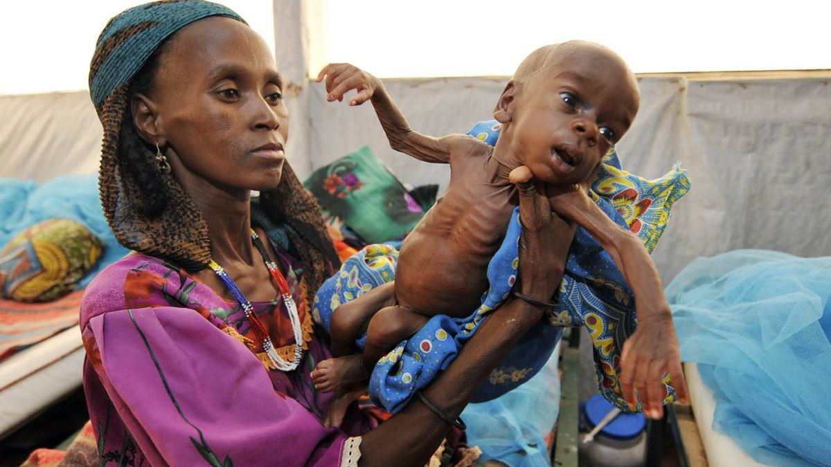 A woman shows her malnourished baby at a nutritional rehabilitation centre in Tanout, southern Niger. Sia Kambou/AFP/Getty Images