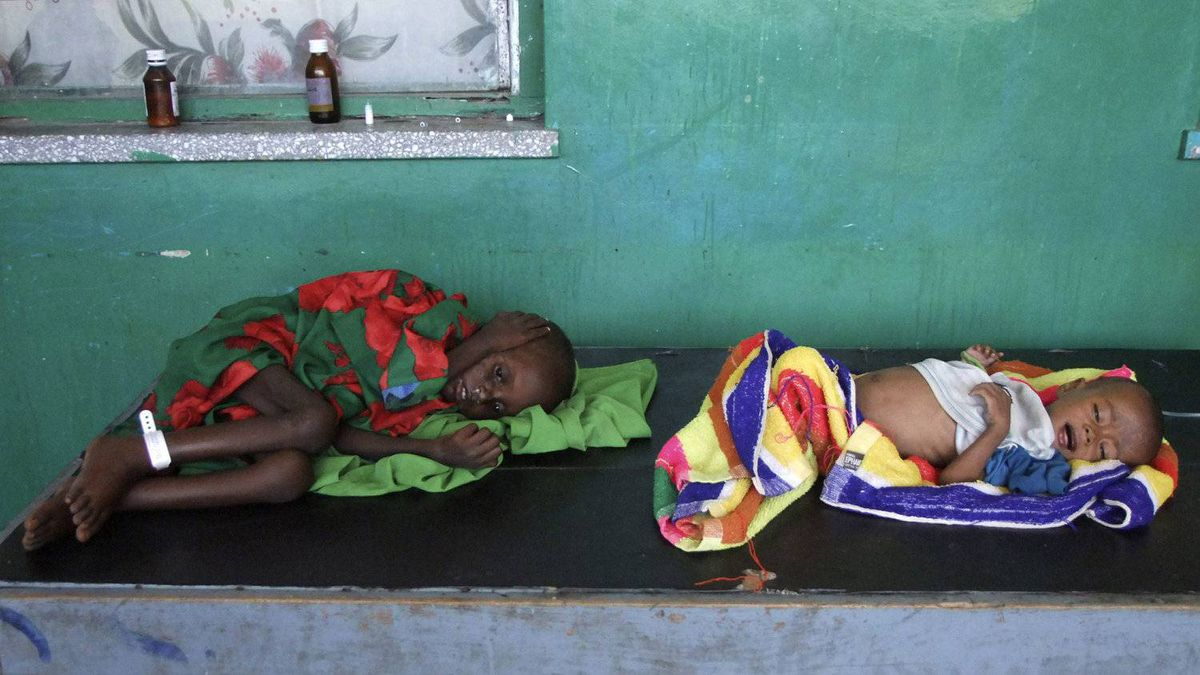 Two severely malnourished children lie on a table in Banadir hospital in Mogadishu, the Somali capital, on Tuesday, July 12, 2011, after fleeing from southern Somalia due to lack of water and food.
