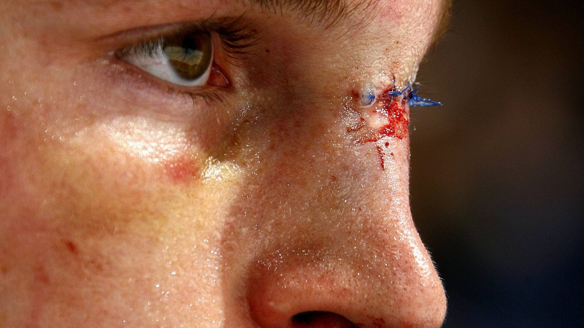 Rick Rypien of the Vancouver Canucks sports fresh stitches in his nose as a result of his fight with Ian Laperriere of the Colorado Avalanche during their game at General Motors Place on December 2, 2006.
