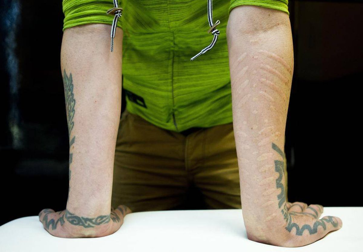 Scarification The Extreme Body Art That S Making A Mark The Globe And Mail