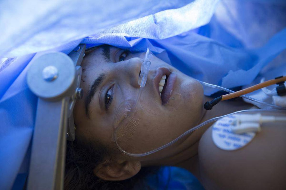 Saving Cyla: How it feels to have awake brain surgery - The