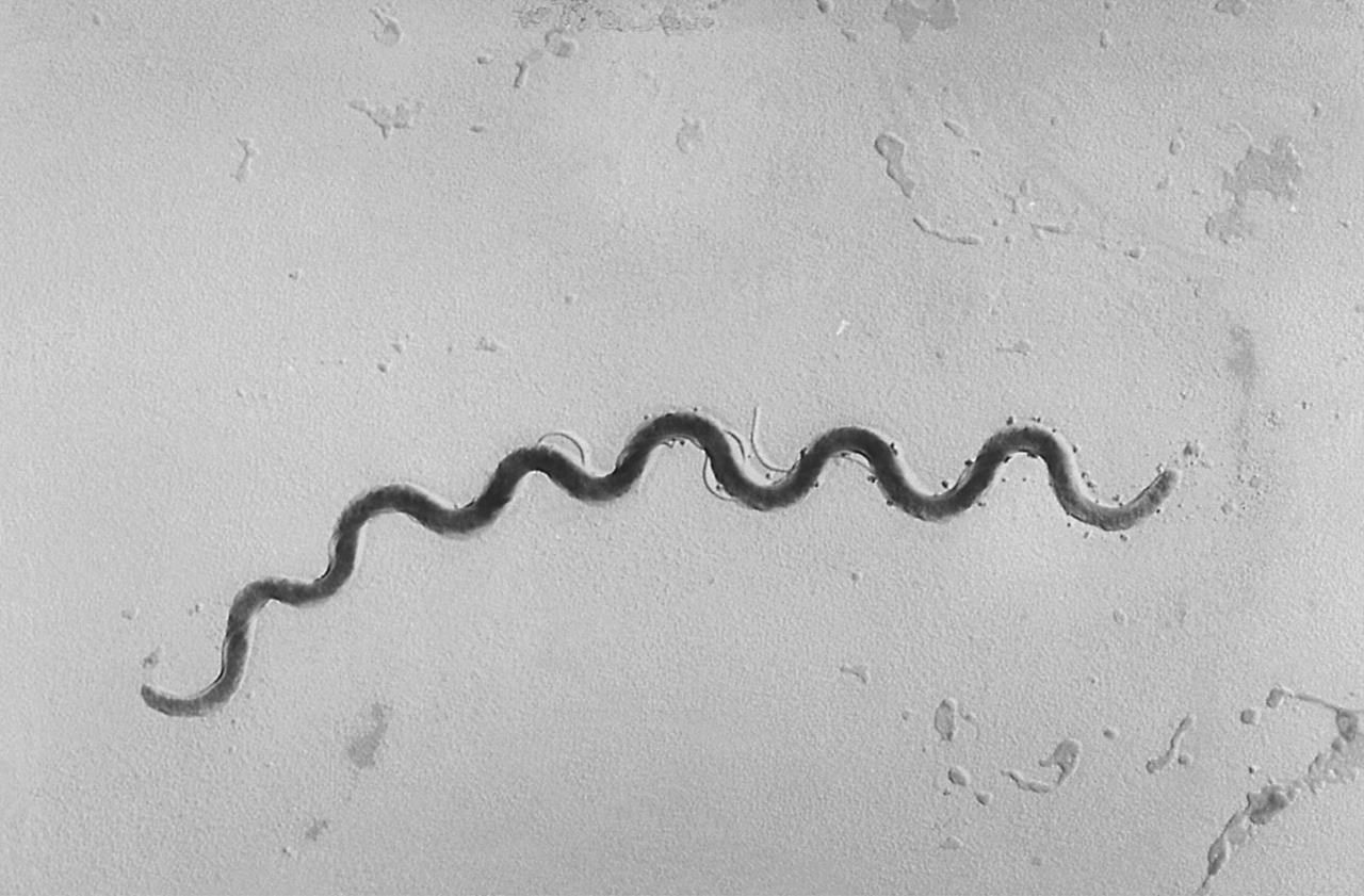 Western Canada: Alberta in the midst of a syphilis outbreak, experts unclear exactly why