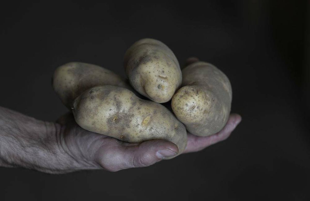 Potatoes much healthier than you might think - The Globe and