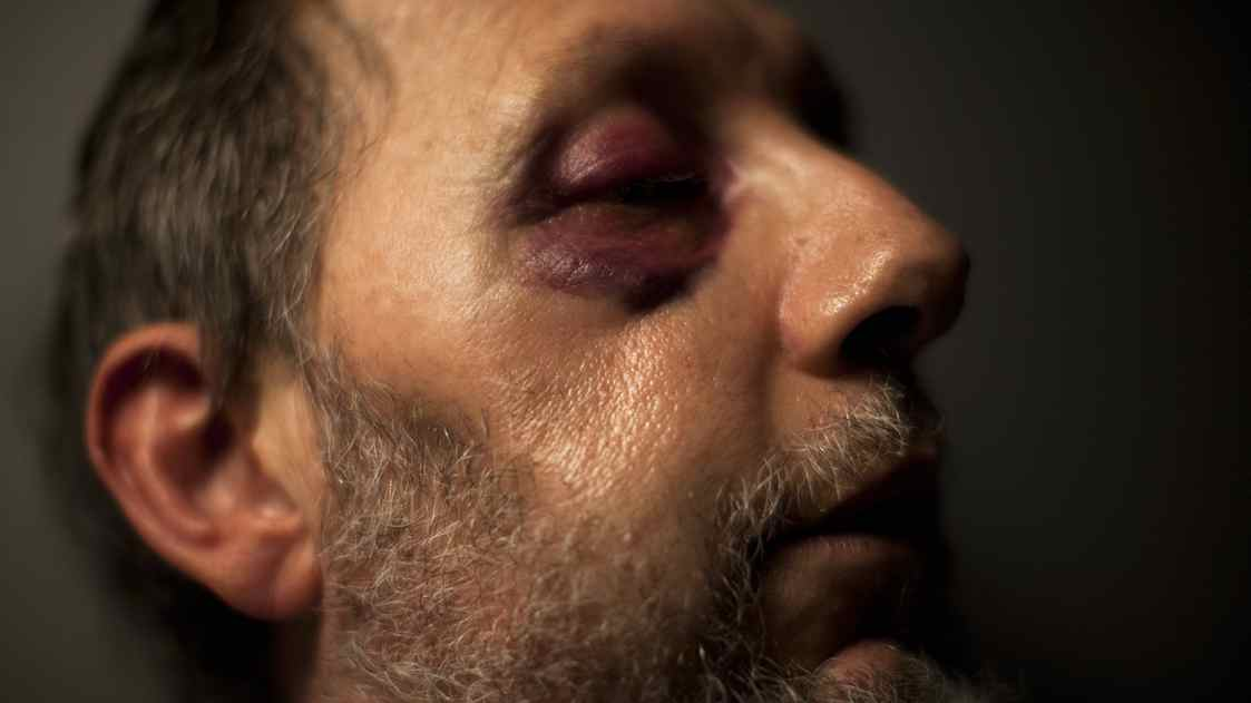 Charles Dixon, 54, who is a bus driver for Coast Mountain Bus Company, recovers from another assault at his family's home in Burnaby, British Columbia, Thursday, February 17, 2011. He has suffered his fourteenth assault in a quarter of a decade as a bus driver after he asked a young man to reenter the vehicle through the front doors.